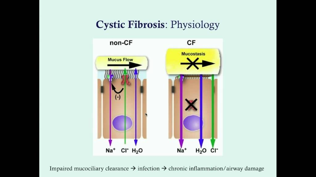 cystic fibrosis part  medical review series paul bolin medical lectures